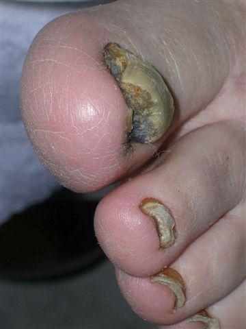 nagels en kanker